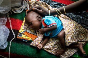 Malnutrition enfantine